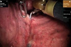 7-ex1-Segmentectomia-anatomica-robotica-del-segmento-dorsale-superiore-sinistro-VERONESI-TAGLIO-745X480