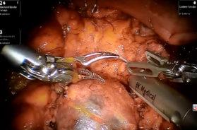 2.1-LUDOVICO-1-Enucleoresezione-robotica-senza-clampaggio-dell_arteria-745X480