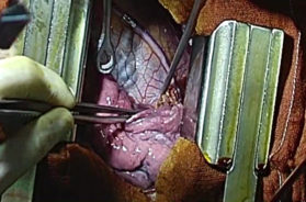 3.13-PARISCENTI-Resezione-bronco-principale-sinistro-per-carcinoide-tipico,-con-reimpianto-(anastomosi-diretta)-e-conservazione-del-polmone-sinistro-(lung-sparing)-745×480