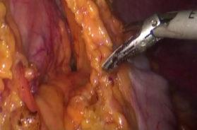 3.3-CARACINO-Gastrectomia-distale-con-anastomosi-gastro-digiunale-secondo-Billroth-II-745×480